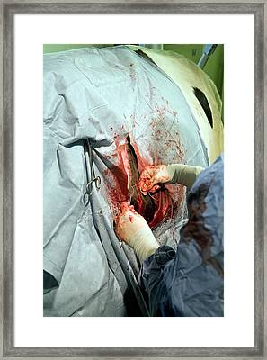 Veterinarian Operating On A Cow Framed Print
