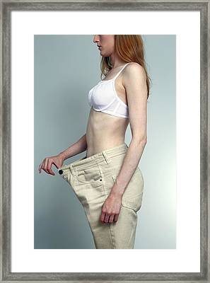 Weight Loss Framed Print by Victor De Schwanberg