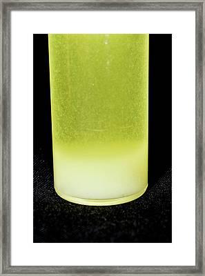 White Blood Cells In Urine Sample Framed Print