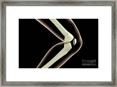 X-ray Image Of Knee Framed Print by Stocktrek Images
