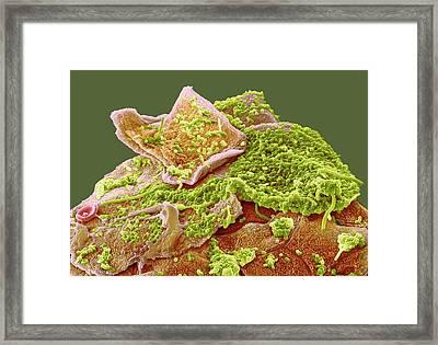 Oral Bacteria Framed Print by Steve Gschmeissner