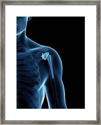 Human Shoulder Replacement Framed Print