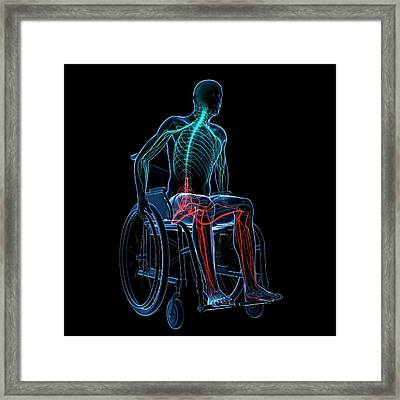 Man In A Wheelchair Framed Print by Sciepro/science Photo Library