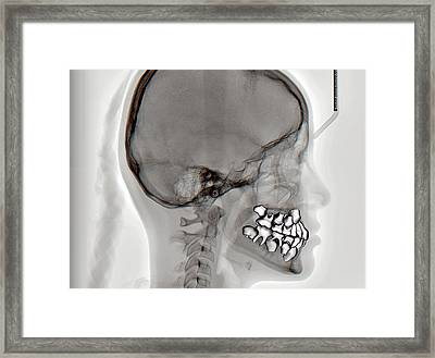 Normal Teeth Framed Print