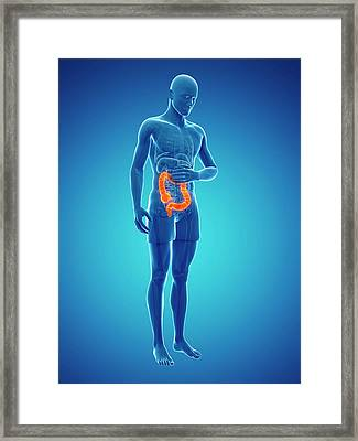 Abdominal Pain Framed Print by Sciepro/science Photo Library