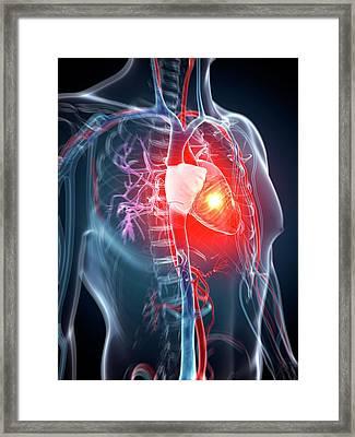 Human Heart Attack Framed Print by Sebastian Kaulitzki