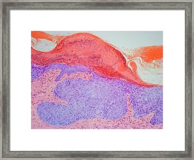 Skin Cancer Framed Print
