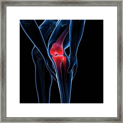 Painful Knee Framed Print by Sciepro/science Photo Library