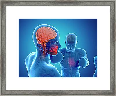 Boxing Match Framed Print by Sciepro/science Photo Library
