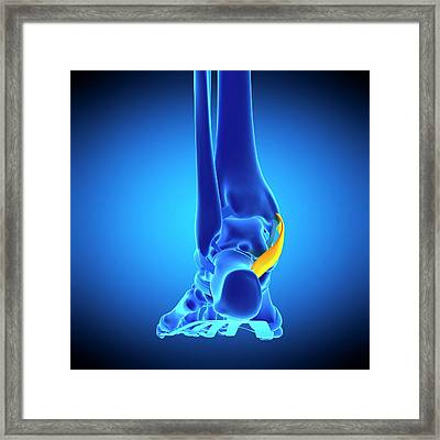 Foot Ligament Framed Print by Sebastian Kaulitzki/science Photo Library