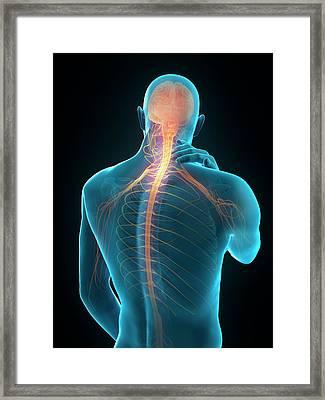 Human Neck Pain Framed Print by Sebastian Kaulitzki/science Photo Library