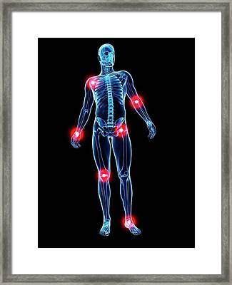 Joint Pain Framed Print by Sciepro/science Photo Library