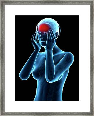 Human Headache Framed Print by Sebastian Kaulitzki
