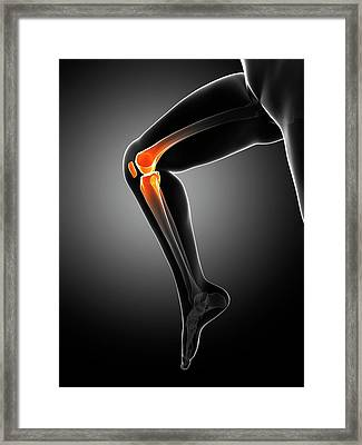 Knee Pain Framed Print by Sciepro/science Photo Library