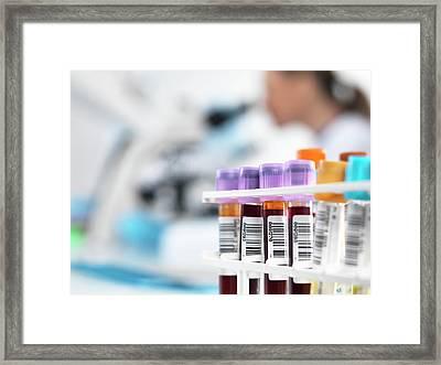 Blood Samples Framed Print by Tek Image