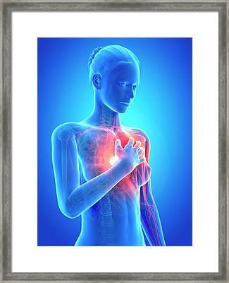 Human Heart Attack Framed Print