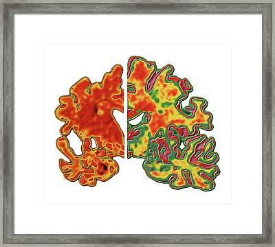 Alzheimer's Brain Framed Print
