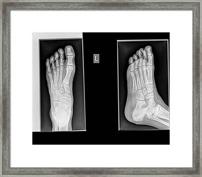 Ankle X-ray Framed Print