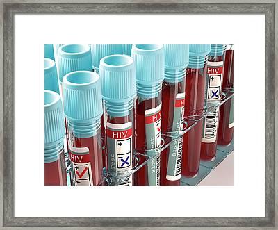 Blood Samples For Hiv Tests Framed Print by Ktsdesign