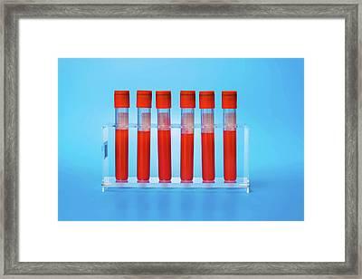 Blood Samples In Tubes Framed Print