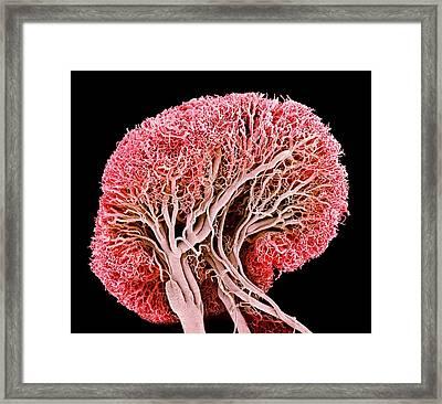Blood Vessels Of A Lymph Node Framed Print by Susumu Nishinaga