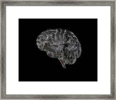 Brain Disease Framed Print