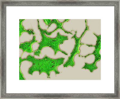 Breast Cancer Cells Framed Print by Science Photo Library