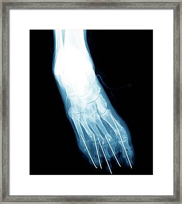 Bunion After Surgery Framed Print by Zephyr