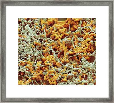 Colitis Framed Print