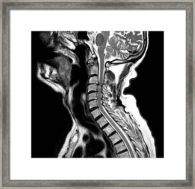Compressed Spinal Cord Framed Print by Du Cane Medical Imaging Ltd