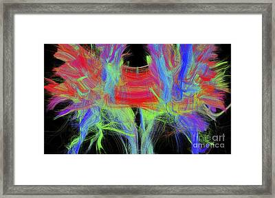 Corpus Callosum, Dti Mri Scan Framed Print by Sherbrooke Connectivity Imaging Lab