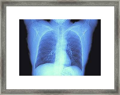 Ct Scan Of Chest Showing Heart And Lungs Framed Print