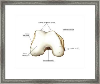 Distal Extremity Of Femur Framed Print by Asklepios Medical Atlas