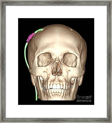 Enhanced 3d Ct Reconstruction Framed Print by Living Art Enterprises, LLC