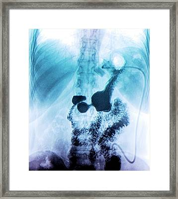 Gastric Ring Framed Print by Zephyr