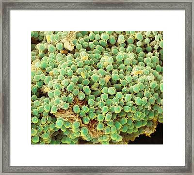 Gingivitis, Sem Framed Print by Science Photo Library