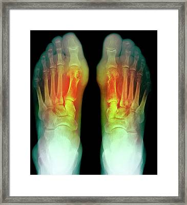 Gout Framed Print by Du Cane Medical Imaging Ltd
