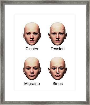 Headache Types Framed Print by Mikkel Juul Jensen