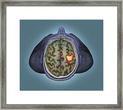 Healthy Brain Framed Print by Zephyr