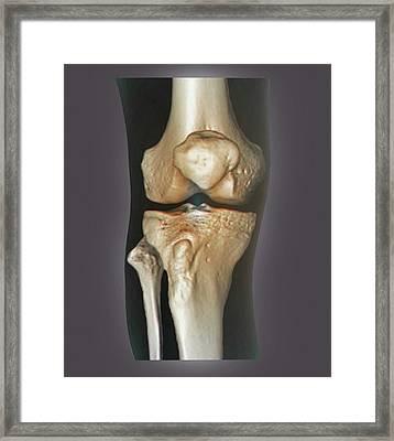 Healthy Knee Framed Print
