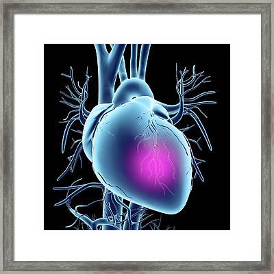 Heart Attack Framed Print
