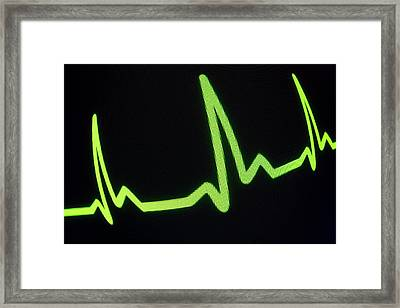 Heartbeat Trace Framed Print