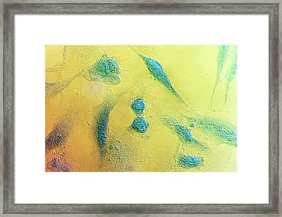 Hela Cells Framed Print