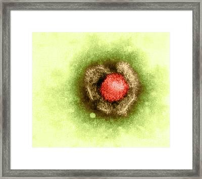 Herpes Simplex Virus Framed Print by Kwangshin Kim