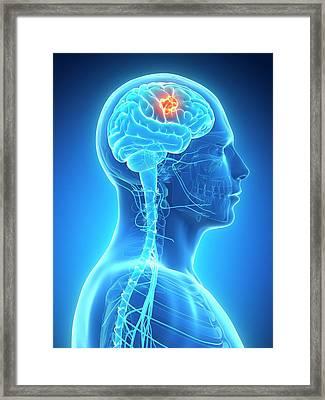 Human Brain Tumor Framed Print