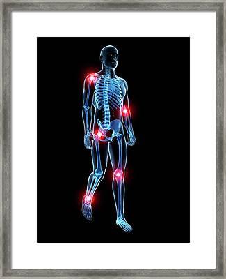 Human Joint Pain Framed Print by Sebastian Kaulitzki