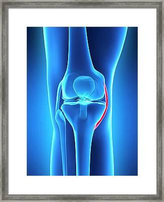 Human Knee Ligament Framed Print
