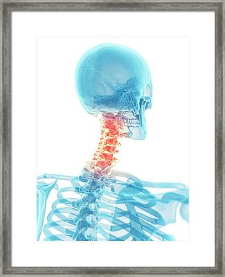 Human Neck Bones Framed Print