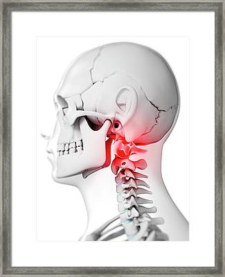 Human Neck Bones Framed Print by Sebastian Kaulitzki
