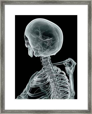 Human Skull And Neck Framed Print by Sciepro